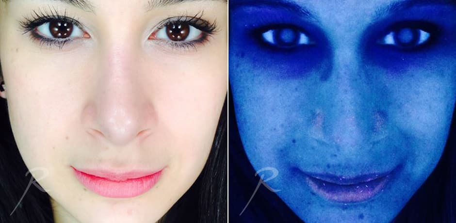 skin-analysis-led-before-and-after-new-york-1